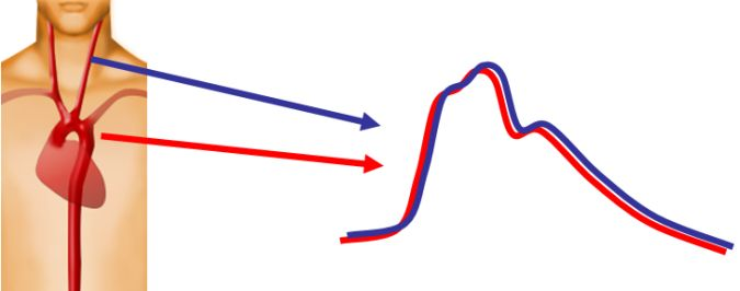 Pression centrale et carotide