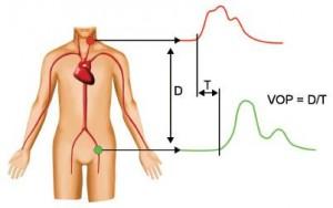 definition de la vitesse de l'onde de pouls